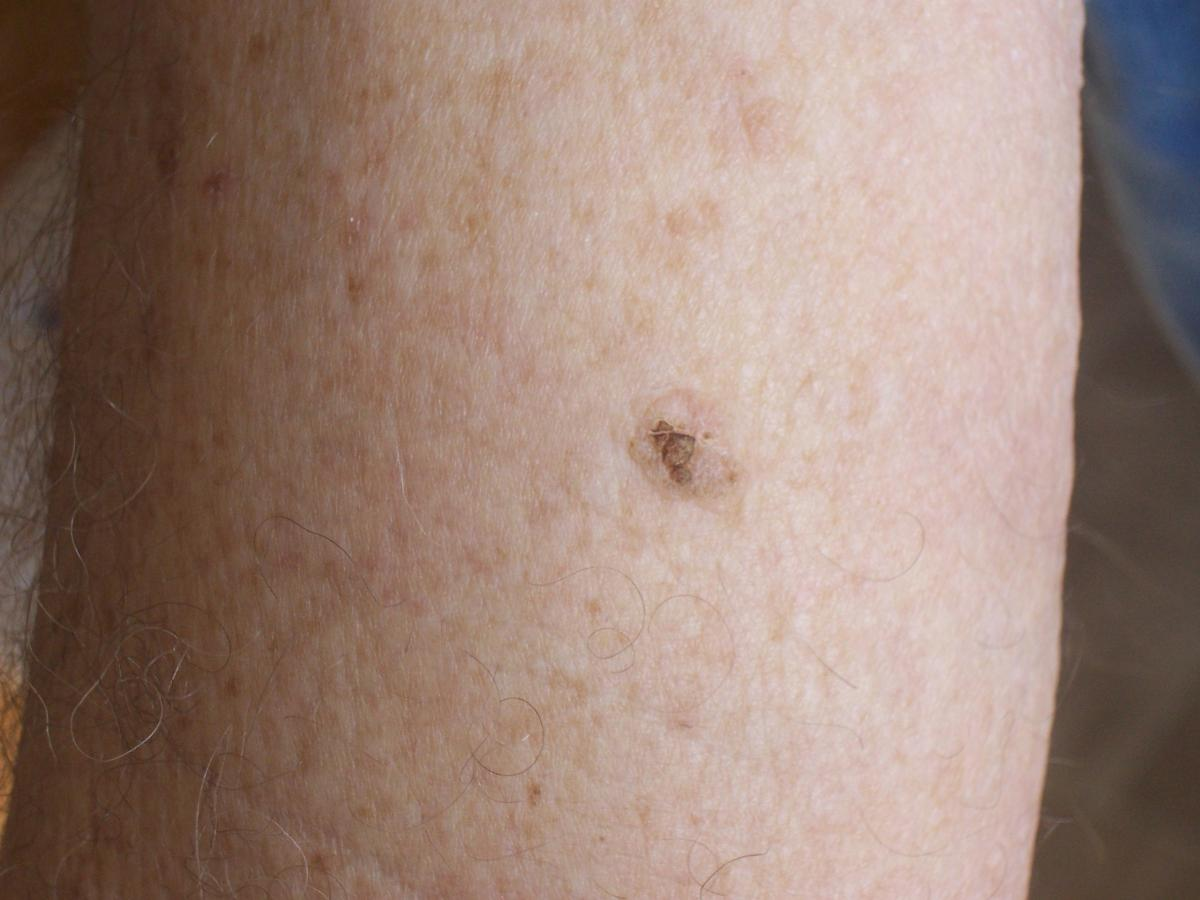removing mole on arm with perrin's blend 2